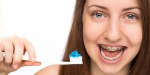 Best Toothpaste for Braces: Leave Your Teeth Fresh and Control Tartar
