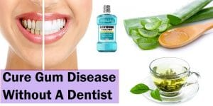 How to Cure Gum Disease Without A Dentist: Do It Yourself