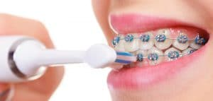 Can You Use an Electric Toothbrush with Braces?