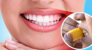 How to Whiten Teeth with Banana Peel: Step By Step Guide